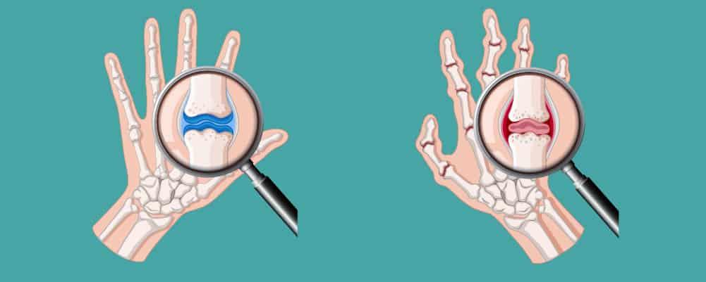 Arthritis in the Finger joints