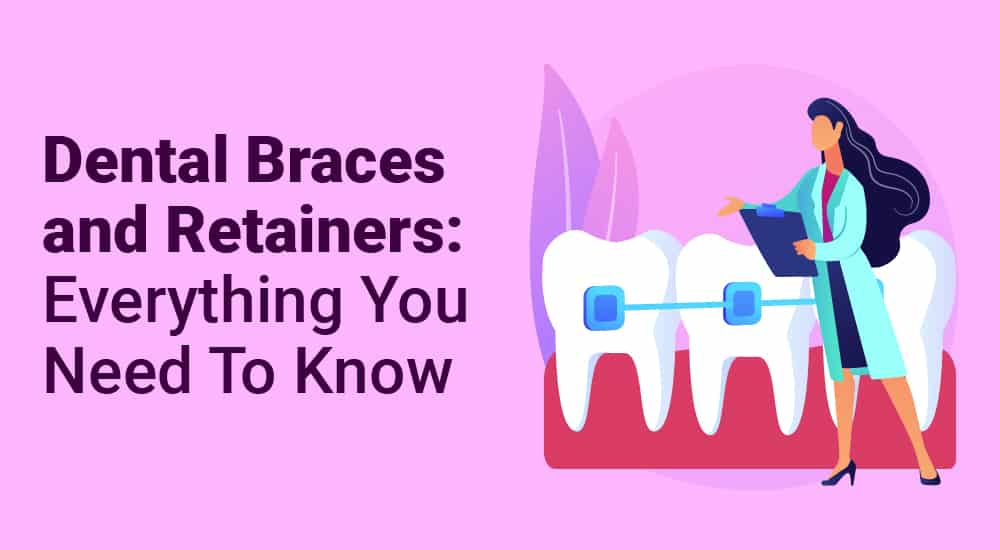 Dental Braces and Retainers Everything You Need To Know