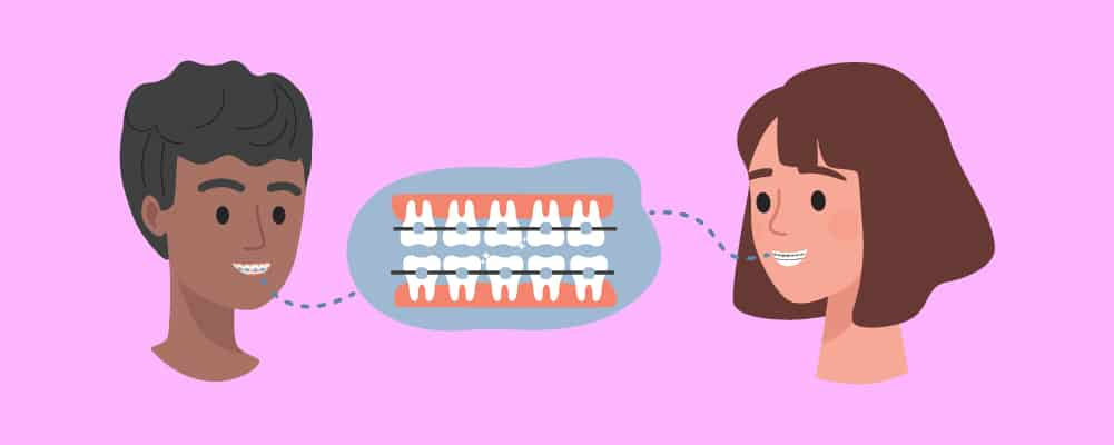 How Long Will You Have to Wear Braces