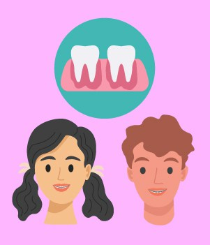 dental braces might cause you pain